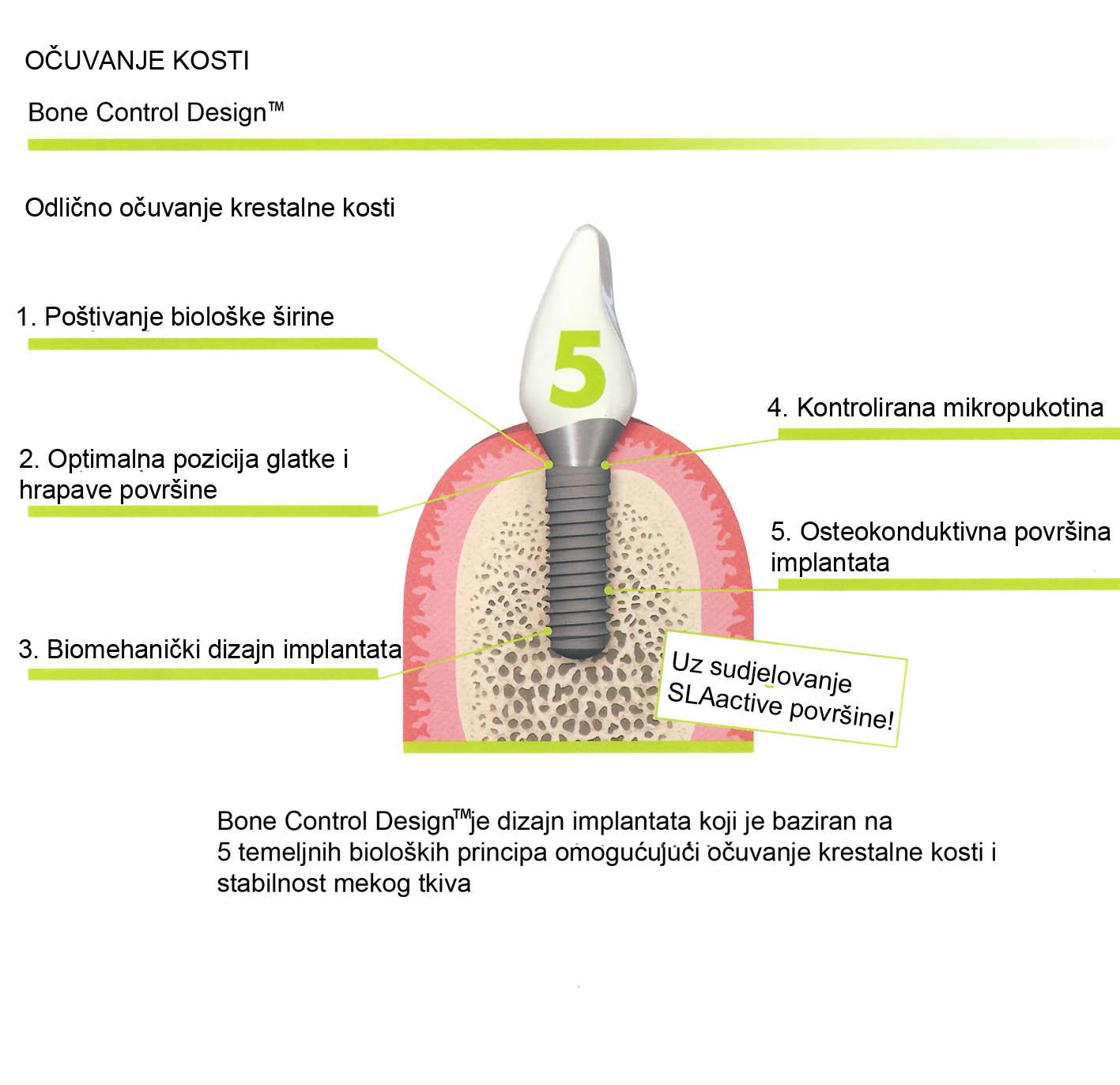Implantology - Dental Centar Omega